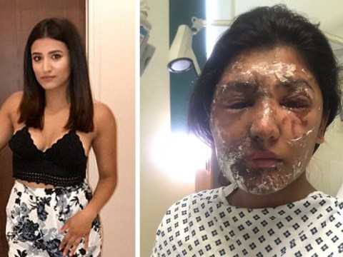 £10,000 raised for acid attack victim Resham Khan in just one day