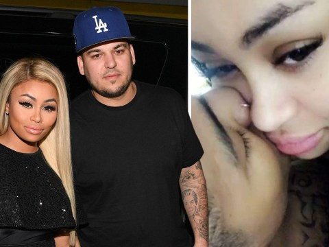 Jealous Rob Kardashian claims ex Blac Chyna had weight loss surgery and posts naked photos in explicit Instagram rant