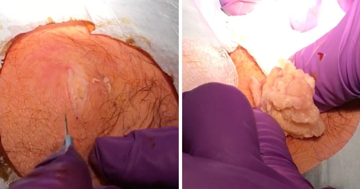 Pus-filled giant cyst popped and then removed in revolting video
