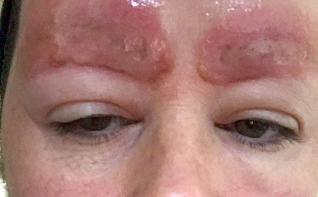 Woman left with horrific scars after eyebrow tattoos became