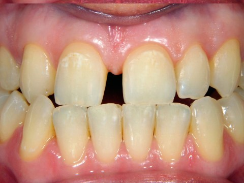 Why are my teeth yellow? 12 reasons your pearly whites are off-colour