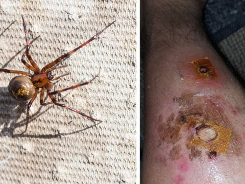Soldier woke up to find false widow spider biting his leg
