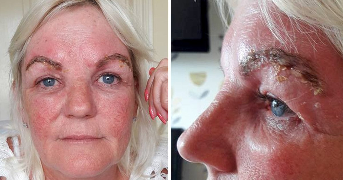 Grandmother 'left with two slugs for eyebrows' after beauty treatment