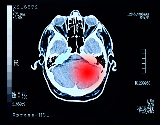 When is a headache a symptom of a brain tumour? | Metro News