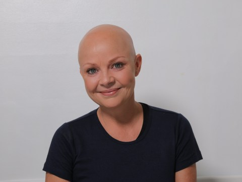 Why there's so much more to alopecia than just losing your hair