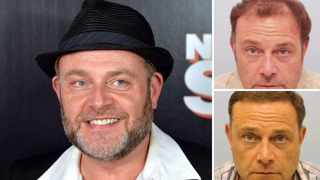 Cold Feet star John Thomson says tons of women have slid in his DMs since his hair transplant