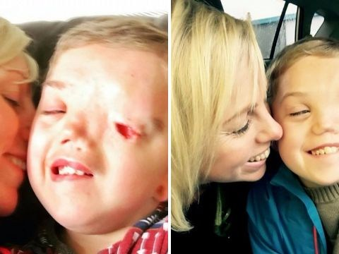 Disabled boy's picture pulled from Instagram after being reported over facial deformity