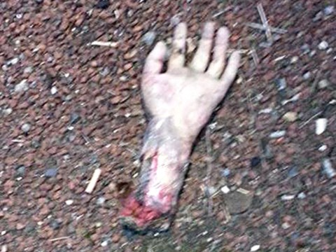 'Severed hand' dumped on road sparks major police operation