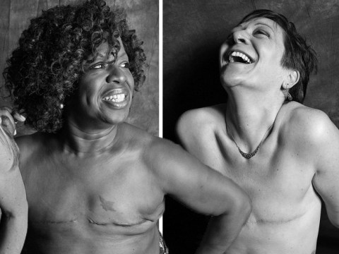 Powerful photo series shares women embracing their mastectomy scars