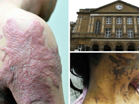 New burns unit inundated with acid attack victims in London