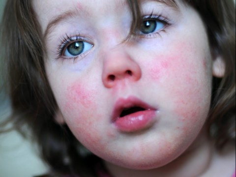 Everything parents need to know about Scarlet fever