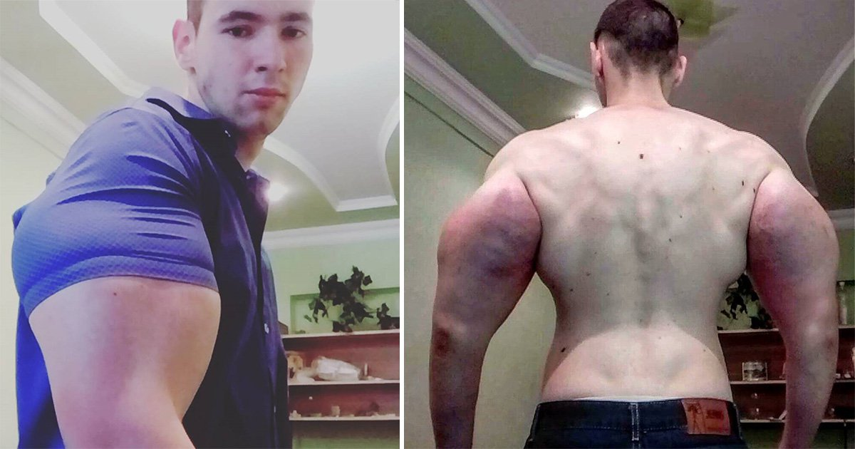 Russian 'Popeye' slammed for injecting his giant biceps