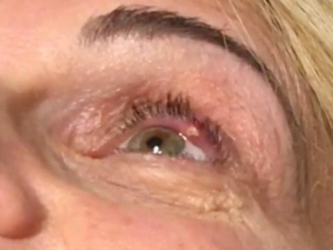 Woman has eye stye popped in truly gross video
