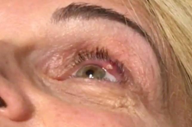 Woman has eye stye popped in truly gross video   Metro News
