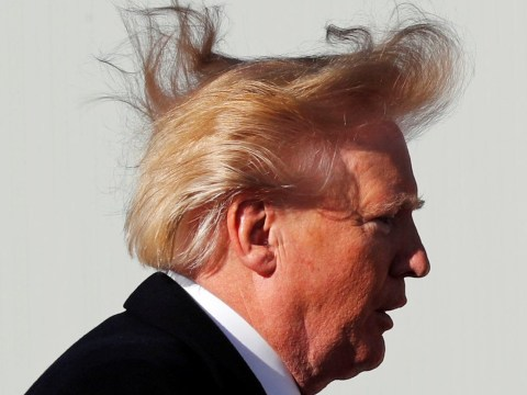 Hydroxychloroquine could make Donald Trump go bald
