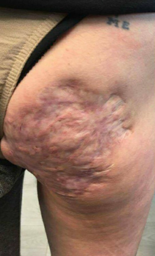 Mum-of-six gets large rose tattoo to cover the abscess scars