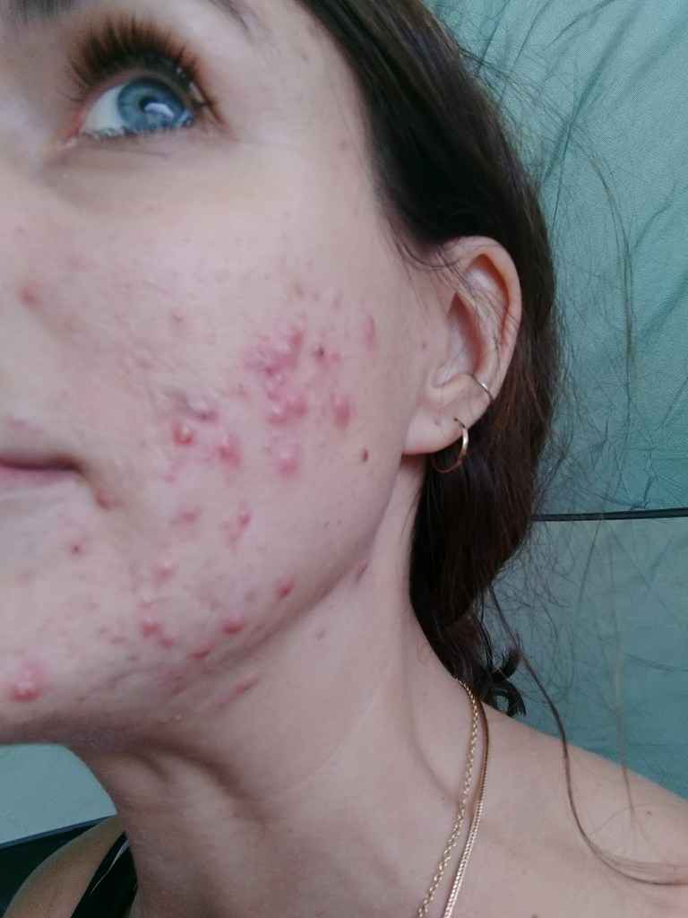 Lisa acne July 2017