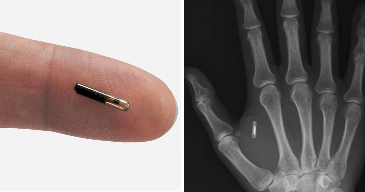 You can now store Ripple and Bitcoin in a creepy microchip implant that's been compared to 'the mark of the beast'