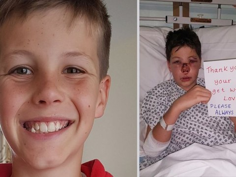 Dad shares photo of bloodied son to show how important helmets are