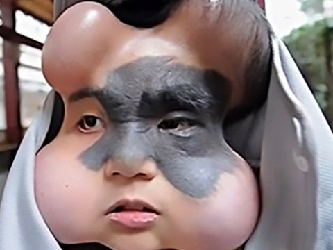 Woman with huge cancerous mole on her face is undergoing skin-stretching treatment