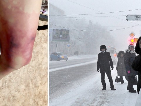 Woman gets frostbite after wearing mini skirt in -40C