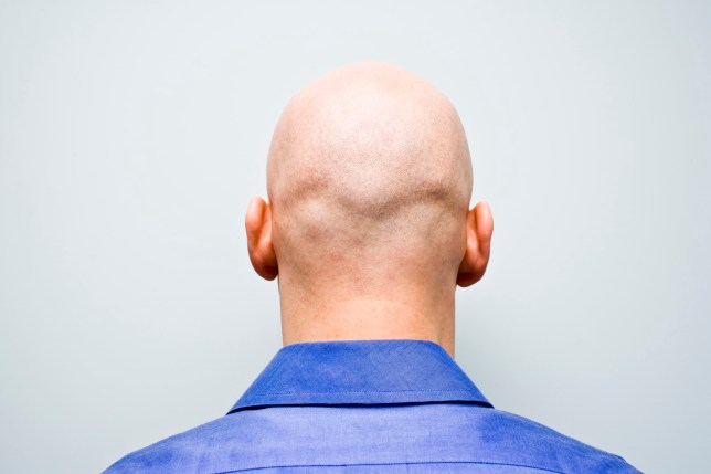 It's feared that pollutants are having a terrible effect on our hairlines as well as our health (Image: Getty)
