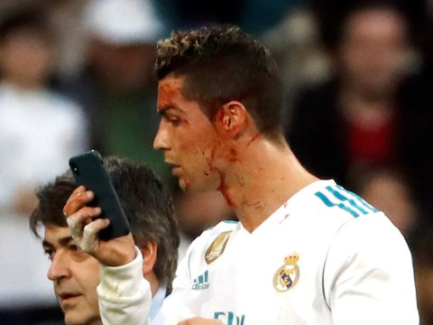 Cristiano Ronaldo uses iPhone camera to check his injury during Real Madrid's win over Deportivo