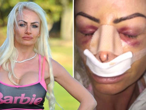 Woman spends £130,000 on surgery to become the UK's real life Barbie