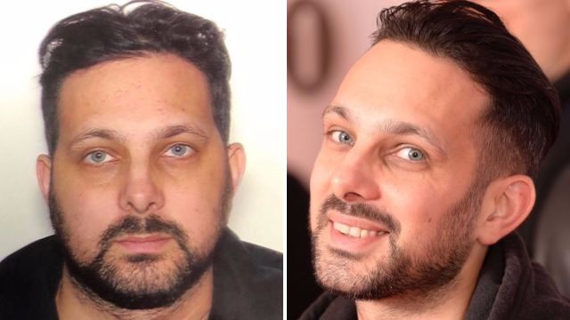 Dynamo shares picture of swollen face with 'no filter' after undergoing treatment to battle Crohn's disease