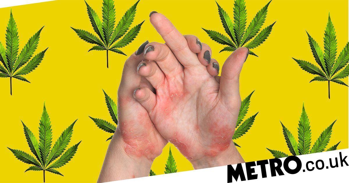 Cannabis can cure eczema and psoriasis, scientists say