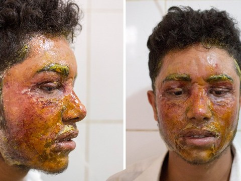 Girl threw acid at boy's face because he turned her down