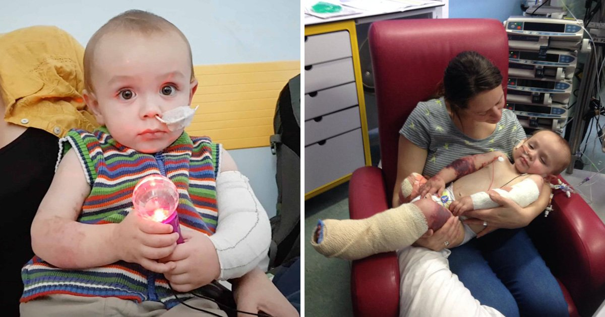 Toddler has leg amputated after 'common cold' turns out to be severe illness
