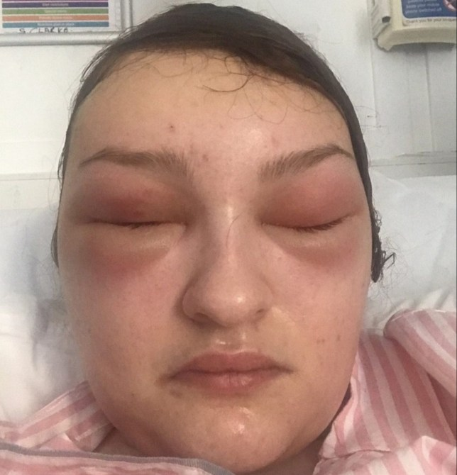 Girl Thought Tumour Behind Her Eye Was Reaction To False