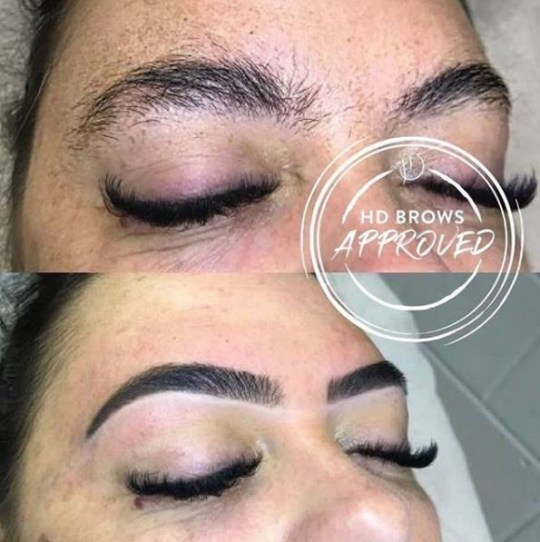 What are HD Brows and what is involved in the treatment