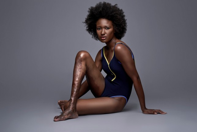 """Berlange Presilus during a photoshoot. A woman who was mocked for her """"ugly"""" leg hit back at bullies by becoming a MODEL. See SWNS story NYLEG; Berlange Presilus, 28, has a port wine stain and prominent varicose veins on her right leg due to rare vascular disorder Klippel-Trenaunay Syndrome. As a young girl she gazed at supermodels in fashion magazines and dreamed of being like them but feared she would never make it due to the malformed limb. She was cruelly mocked by classmates who said it looked like her leg was DYING and covered up under long trousers and skirts for 14 YEARS in shame. But brave Berlange battled through her insecurity and went on to prove the bullies wrong by modeling for brands including Toys R Us, Samsung, Mac and Johnnie Walker. She has now made it her mission to promote diversity and bravely bared her pins in a series of striking unedited snaps in an effort to spread her message.'UGLY' LEG."""