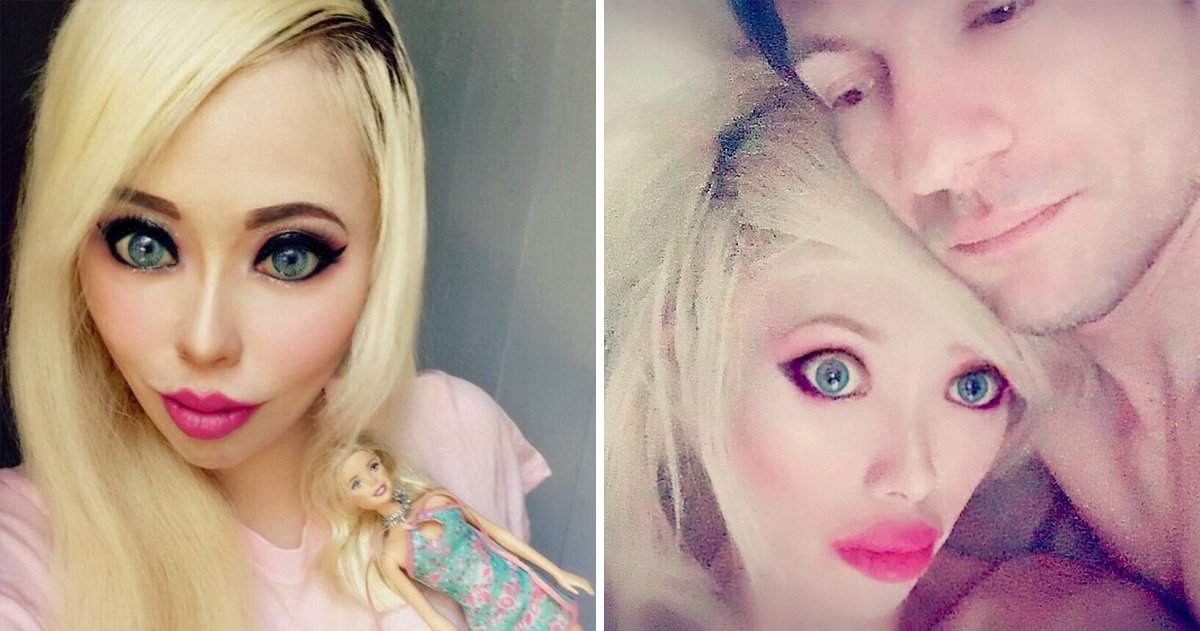 Real-life Barbie who spent £50,000 on surgery finally falls in love