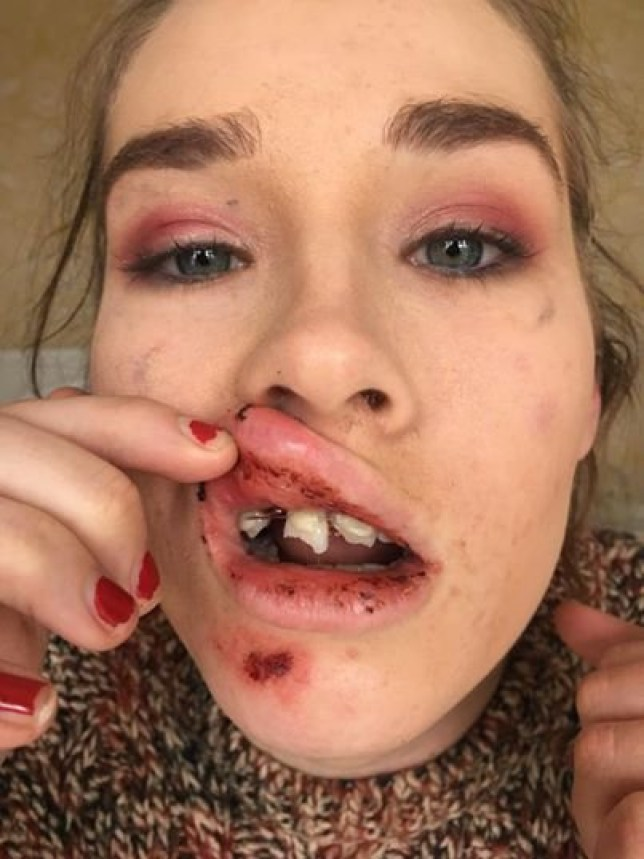 A student was brutally has had some of her teeth knocked out when she was brutally knocked unconscious in an unprovoked attack outside a supermarket. Georgia Jennings, from Birmingham, was on her way home after a night out when she was assaulted outside Asda in Molineux Way, Wolverhampton, between 3am and 3.50am, on April 1.