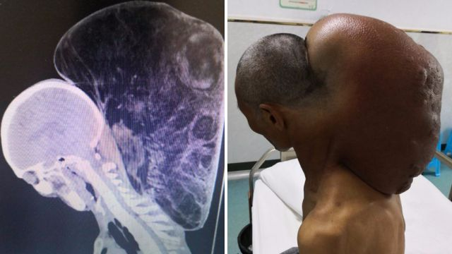 Man's massive neck tumour has been growing for 47 years