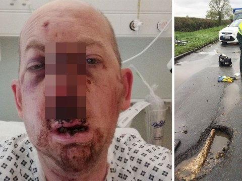 Cyclist hit 9-inch deep pothole and smashed face so bad friends had to pick up his teeth