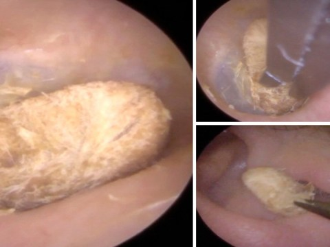 Gross moment cotton bud is removed from man's ear after two years