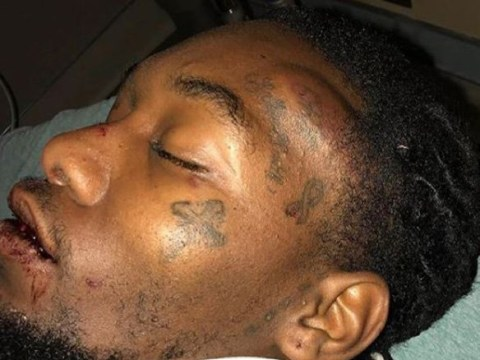 Offset reveals he 'could have died' in car crash as he shares photos of bloody injuries