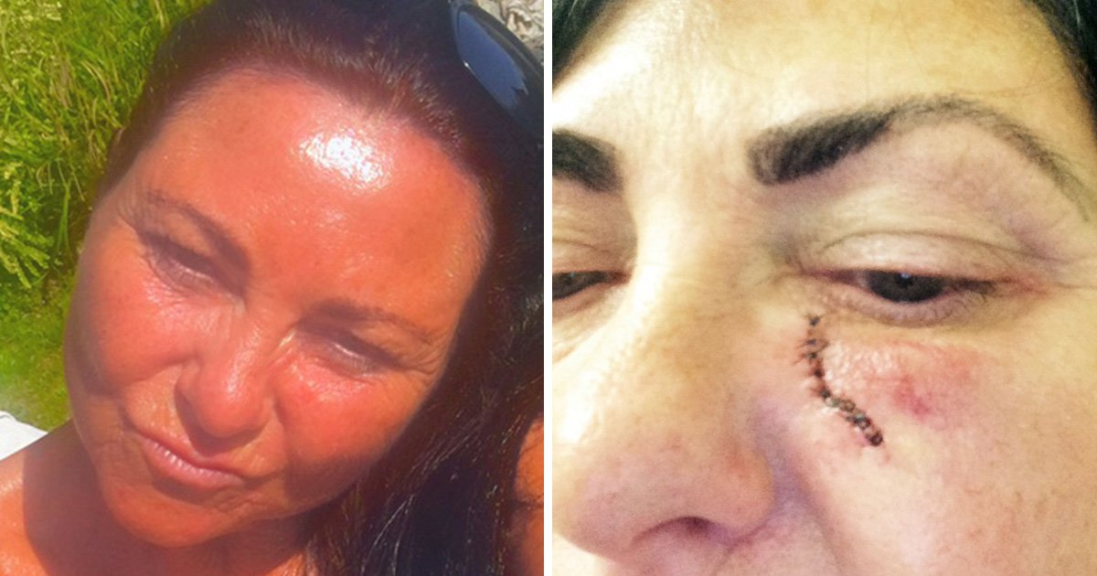 Woman won't stop tanning despite getting skin cancer on her face