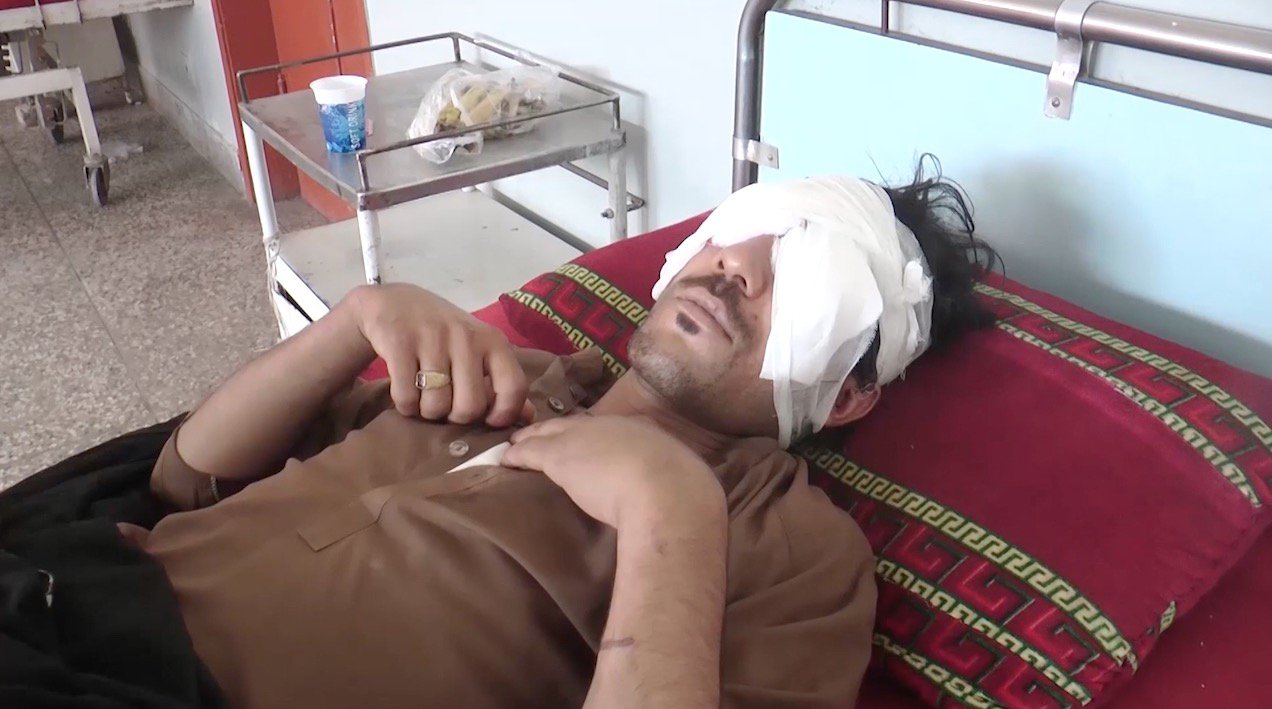 ANAS HAMDANI/ CATERS NEWS: (PICTURED: Abdul Baqi, 22, admitted in Jinnah Post Graduate Medical Centre in Karachi, after his eyes were gouged out by his father and brothers for being in a relationship with girl). In a horrific incident in Pakistan, a young mans eyes were gouged out by his family members for wanting to marry a girl of his choice. Abdul Baqi, 22, from Nasirabad village in Pakistans Balochistan province on Saturday expressed his desire to his family that he wants to marry a girl, he was in relationship with. He asked the family to take an engagement proposal to the girls house. But the news did not go down well with his father and brothers. His 70-year-old father Dost Muhammmad and four brothers - Abdul Ghani, Abdul Sattar, Abdul Rehman and Abdul Karim - held him in a room and gouged out his eyes of their sockets. SEE CATERS COPY.