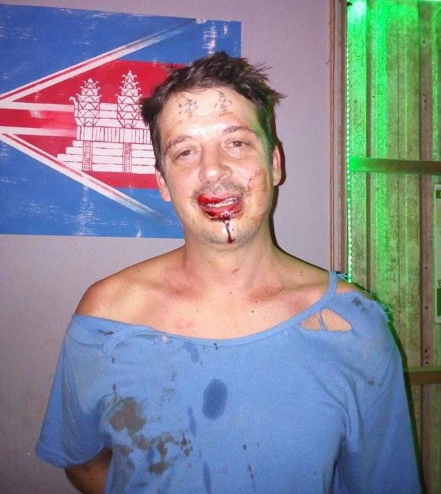 "from Chris Murphy 01634 686 515 A British ex-pat who drunkenly got a giant 'Taiwan' tattoo on his FOREHEAD has been savagely beaten by a group of angry Chinese men. Around a dozen men set upon him in a Cambodian bar where he was spending some time on holiday. He ended up with one tooth knocked completely out and others bashed out of place. Relations between China and Taiwan have never been cordial. And it is believed seeing the tattoo sent the Chinese men in to a rage. The victim, Paul Ferrell, hit the headlines last year when he admitted his wife was furious with the tattoo, which included the national flag on his chin. That has since been removed. Now he has paid dearly for the bizarre inking across his forehead, which he got during a drunken night out. The Taiwan News reports he was savagely beaten by nearly a dozen Chinese men in a small city in Cambodia when they discovered he had the 'Taiwan' tattooed on his forehead. A discussion started and soon turned in to a row when he refused to recognise their claim that the country is part of China. The local paper said that while on vacation in Cambodia, Paul, who has lived in Taiwan for 14 years, took a seat at a bar in Sihanoukville Square in the coastal Cambodian city of Sihanoukville, on Saturday night. Once he took his hat off, a large group of Chinese men sitting nearby, who he believed to be overseas workers, noticed that the traditional Chinese characters for 'Taiwan' were tattooed on his forehead. The paper said one of the Chinese men then shouted in Mandarin: ""Taiwan, China!"" Answering back, Paul said: ""Taiwan, Taiwan!"" Paul told the paper that was when they ""went insane, grabbed poles and started attacking me."" Paul, who has taken on the name Lohan, says that at least 10 Chinese men savagely beat him, demanding that he say that Taiwan is part of China, as hundreds of bystanders watched. Refusing to refer to Taiwan as part of China, but fearing for his life, Paul said in Mandarin, ""OK, you think Taiwan is"