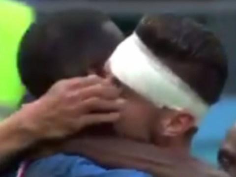 Nabil Fekir accidentally pokes Olivier Giroud in the eye during France winner celebrations
