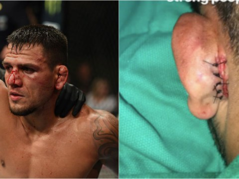 Rafael dos Anjos goes under the knife after coming close to losing ear at UFC 225