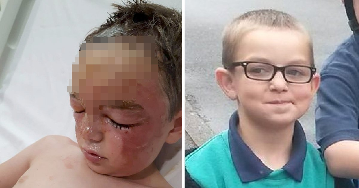 Boy, 7, scarred for life after kettle of boiling water fell onto him