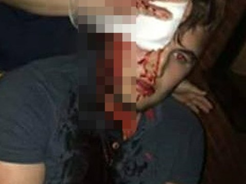 Rugby player suffers bleed to brain in 'hate crime' by Asian gang