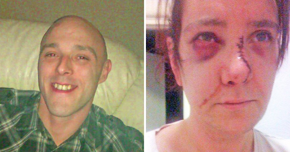 Man who left girlfriend scarred for life after two years of abuse escapes prison sentence