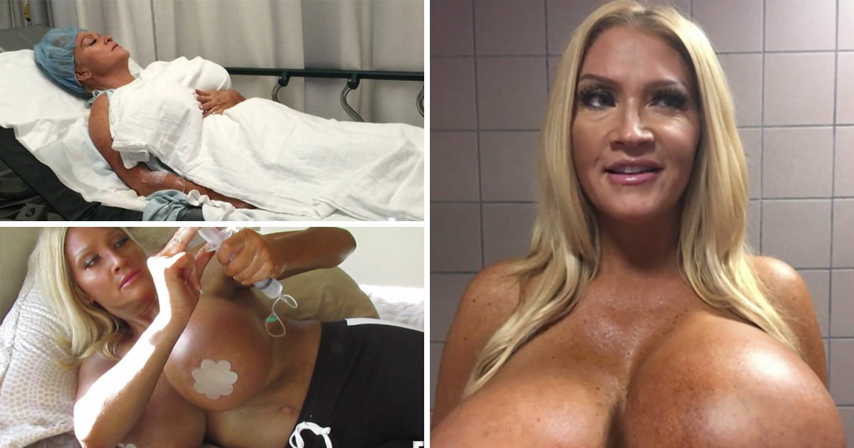 Woman left with lopsided breasts from self-inflating implants begs doctors for help